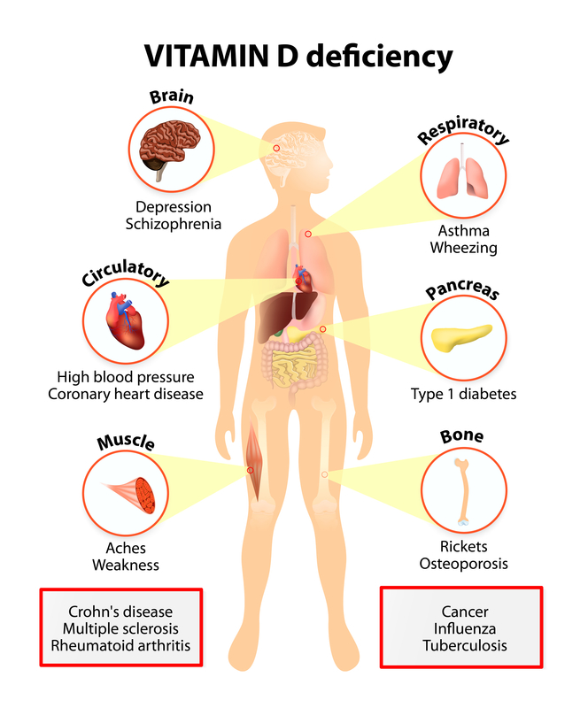vitamin d deficiency muscle stiffness